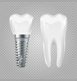 dental implant realistic healthy tooth and vector image vector image