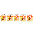 types of acne open comedones closed comedones vector image vector image