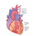 Heart bypass vector image vector image
