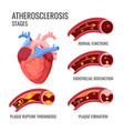 atherosclerosis stages normal functions vector image vector image