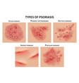 psoriasis types skin hives derma diseases vector image vector image