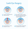 lasik eye surgery vector image
