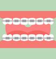 orthodontics teeth or dental braces vector image vector image