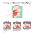 snoring and obstructive sleep apnea vector image