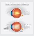cataracts vision disorder and normal eye vision vector image