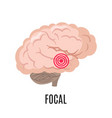 focal epilepsy icon isolated on white background vector image vector image