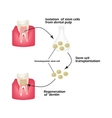 Stem cells from the dentin of the tooth is used to vector image