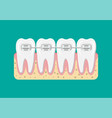 teeth braces flat vector image vector image