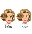 acne treatment before after vector image vector image