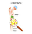 osteomyelitis and bacterial infection that caused vector image vector image
