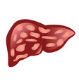liver affected by cirrhosis vector image vector image