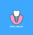 simple icon of white dental implant vector image