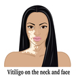 Vitiligo on the neck and face vector image vector image