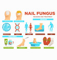 nail fungus reasons and treatment poster with text vector image vector image