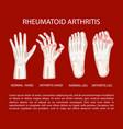 arthritis leg hand rheumatoid medicine education v vector image