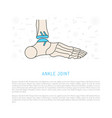 ankle joint replacement vector image vector image