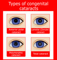 types of congenital cataracts vector image