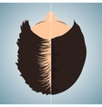 Balding woman before and after hair treatment vector image