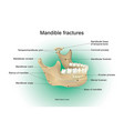 mandible fractures vector image vector image