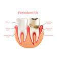 periodontitis inflammation of gums 3d realistic vector image vector image