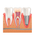 realistic healthy teeth structure dental implant vector image
