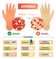 anemia with blood cells scheme vector image