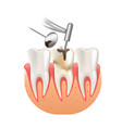 clean caries by tooth dental drill 3d realistic vector image