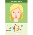 Diagram showing eye with cataract vector image vector image