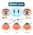 bionic lens vision structure vector image vector image