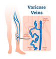 varicose veins with irregular blood flow vector image