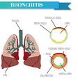 Healthy and inflamed bronchus Chronic Bronchitis vector image vector image