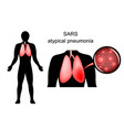 sars inflamed lungs and the causative agent vector image vector image