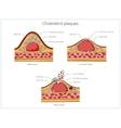 Cholesterol plaque medical educational vector image vector image