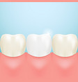 healthy tooth teeth whitening isolated on a vector image vector image