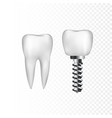 healthy white tooth and implant with steel screw vector image