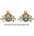 Protrusion of the intervertebral disc vector image vector image