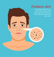 man face skin problem black dots vector image vector image