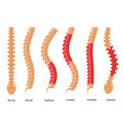 osteoporosis bone types infographics concept card vector image vector image