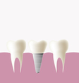 Dental implant and normal tooth vector image