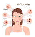 types of acne woman with pimples vector image
