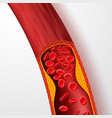 blocked blood vessel artery with cholesterol vector image vector image