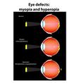 eye defects vector image vector image
