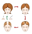 Female hair loss and transplantation icons vector image