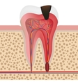 infected tooth vector image vector image