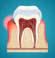 Start disease gum and caries on human teeth vector image vector image