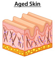 Close up diagram of aged skin vector image vector image