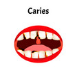 caries smell from mouth halitosis the vector image vector image