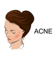 acne vector image vector image