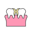 plaque on teeth cavity tooth decay dental related vector image vector image