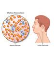 mononucleosis vector image